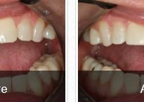 Tooth Bonding By Mesa Dentist Dr. Gary Robison
