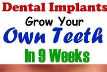 nieuwe tanden/kiezen in 2 maanden