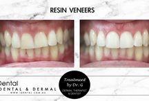 iDental Before and Afters / We are proud of our work.