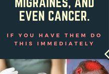 migraine causing bulbs