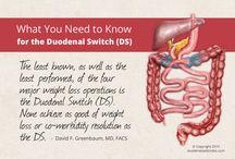gastric bypass info