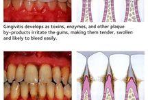 Dental Diseas