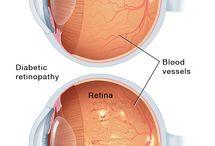 Low Vision/Blindness/CVI