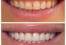 dental transformations