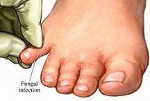 arrrasa hongos d los pies