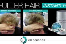 Before and Afters / We all love a good before and after shot. So we've got some from our lovely customers just to prove to you that TecTrich really does work. Instant Hair in 20 seconds.