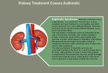 Kidney Treatment By Puneet Dhawan