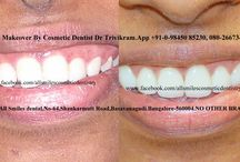 smile makeover veneers / Smile makeovers by expert cosmetic dentist Dr Trivikram(Dr Vikram) in Bangalore.porcelain veneers cost,dental veneers cost,smile makeover surgery,smile makeover veneers,smile makeover information.ALLSMILES - CENTRE FOR COSMETIC DENTISTRY AND DENTAL IMPLANTS.located only at - N0.64, SHANKAR MUTT MAIN ROAD BASAVANAGUDI.(no other branches). BANGALORE- PH +91-0- 98450 85230.080-26673439.More at http://www.allsmilesdc.org/cosmetic-dentistry/