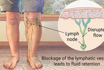 Lymphedema Of Legs