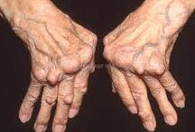 Cures for arthritis & natural remedies