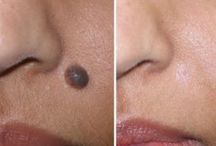 Mole Removal in Delhi / Undergo for mole removal in Delhi http://www.kashyapskinclinics.com/removal-of-moles.html