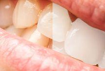 KOSMETISCHE ZAHNHEILKUNDE / Dr. Cora Haller-Waschak ist Ihre kompetente Zahnärztin für ästhetische Zahnheilkunde in Wien. Unsere Praxis bietet Ihnen Bleachings, Keramikkronen (individuell angepasst), ästhetisch perfekte Eingliederung von Prothesen und vieles mehr aus dem Bereich der ästhetischen Zahnheilkunde.  http://www.dieaerztin.at/kosmetische-behandungen-zahnarzt-wien.php