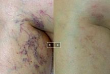 Vascular Treatment/Body&Face / People seek treatment for vascular lesions or birthmarks for both cosmetic and medical reasons. Advances in the use of lasers and light sources enable physicians to effectively treat vascular lesions that were previously untreatable.