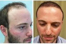 Transplant Facts: What's true and What's Not / Aravali Hair Clinic provide you best hair transplant treatment in Delhi at affordable prices and they have experienced doctors which use the latest technology for hair transplant.