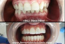 HollywoodsmileLebanon / Dr.Habib Zarifeh the Hollywood smile dentist in Lebanon Beirut can change your life, with no anaesthesia, no drilling, no pain. Call us now: +96170567444 visit Hollywood smile prices in Lebanon at: http://www.hollywoodsmilecost.wordpress.com