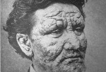 Medical pictures / Old photo of a man suffering from leprosy