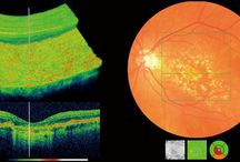 OCT / 3D scans of the main structure of your eyes