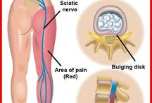 sciatic nerve pain relief / by Cherie Kraemer