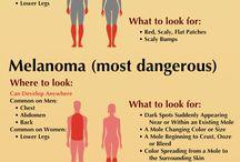 Avoiding skin cancer
