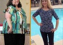 Gastric Bypass Surgery Success Melissa Kuhn / Melissa began gaining weight in 2007 when she moved to South Texas. Her weight gain was brought on by lack of discipline and stress in her personal and professional life. Once she was diagnosed with a fatty liver, high blood pressure, and became a border line diabetic Melissa decided to see Dr. Patel. She has now lost over half of her body weight and began dating and socializing once again!