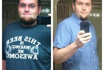 Credit card for weight loss surgery picture 10