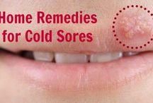 Cold Sore / Cold Sore Treatment & Guide.