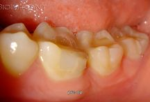 ***11 YEARS (!) FOLLOW UP OF OUR VERY FIRST MULTI ROOTED ANATOMIC CERAMIC DENTAL IMPLANT.***