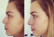 arreglo nariz
