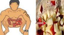 tratamento intestinal