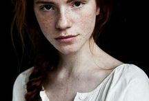 red hair, freckles