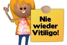 Vitiligo / Vitiligo Behandlung