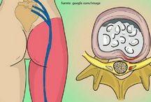 inflamación del nervio ciático