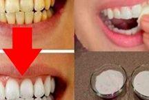 Vitare tänder