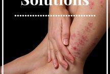 Healthy / Eczema