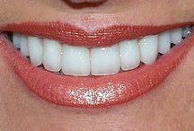 smile no1