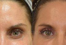 Under-eye Skin Rejuvenation / Non-surgical Treatment Options for Under-eye Skin Wrinkles, Dark Circles, Under-eye Hollows