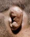 Cauliflower Ears