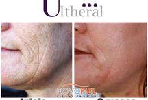 """Ultherapy / ¡Con Ultheral, rejuvenece hasta 5 años, en tan sólo UNA sesión, """"EL IMPERIO DEL 'LIFTING' SIN CIRUGÍA"""" !  Es el ÚNICO tratamiento NO invasivo con 4 certificaciones de la FDA (Federación Americana del Medicamento) para el tensado de la piel del rostro, cuello y escote, el cual suaviza, mejora el aspecto de la piel y su principal cualidad es su efecto es de elevación de la piel.  Novopiel...Evolucionando con la mejor Tecnología!"""