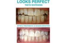 Cosmetic Teeth Whitening / 100% Safe and Legal, Revolutionary Magenta LED,  De-sensitizing Teeth Whitening System