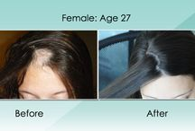 Before and Afters / These are photos of people who use More Hair Naturally products to better their hair and scalp