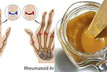 artrite rimedi