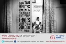 Leprosy Facts / How much do you know about this ancient disease that's still affecting millions today?