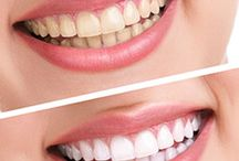 Teeth Whitening At KR Dental Care / We offers teeth whitening treatment with best dental solutions to the customers with affordable prices.