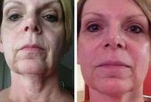 Eliminate Facial Wrinkles Via Face Fitness Aerobics / Glean Amazing Face Rejuvenation Aerobics To Look Younger And Lift Up Sagging Face Skin