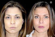 Soft Lift / Rejuvenescimento facial