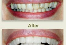 Smile Gallery / The top dentistry in Ypsilanti MI 48197 belongs to Cori K. Crider DDS. Dr. Crider is a dentist who works in a mercury free dental office and specializes in family dentistry, cosmetic dentistry, sedation dentistry and cosmetic orthdontics. http://www.coricriderdds.com/