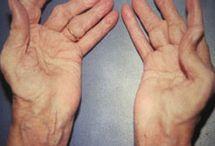 Austin Arthritis