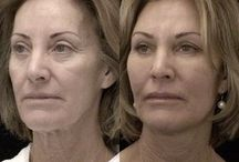Get Rid Of Under Eye Wrinkles And Dark Circles With Face Yoga