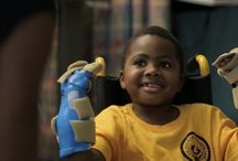 double hand transplant / An 8-year-old has become the first child in the world to receive a bilateral hand transplant. The procedure was carried out by surgeons based at the Children's Hospital of Philadelphia, assisted by colleagues from Penn Medicine.