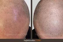 Hajtetoválás - HIMG hajbeültetési klinika